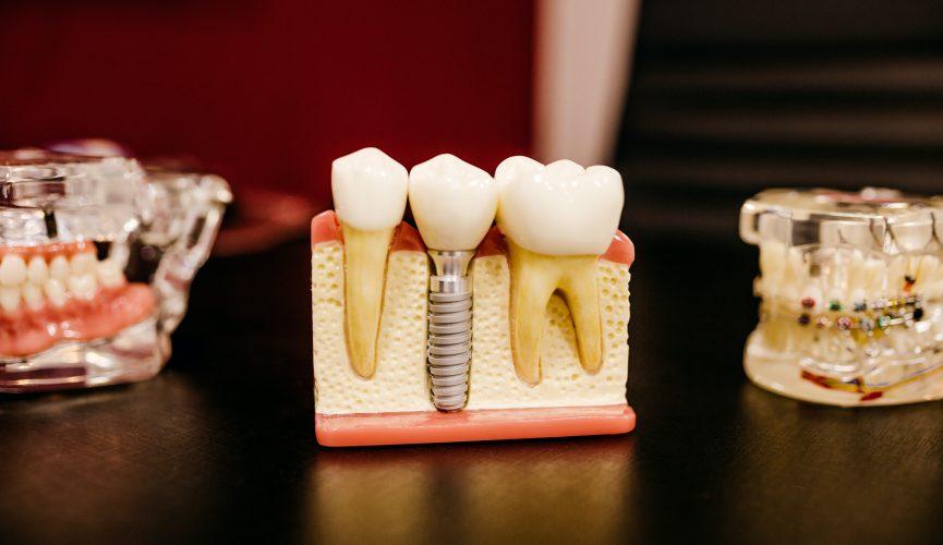 prisliste tandlæge